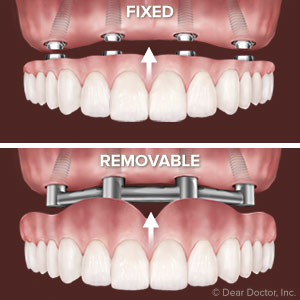 Fixed Or Removable Deciding On Which Implant Supported Bridge