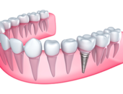 Dental Implants: Are They Right For You?